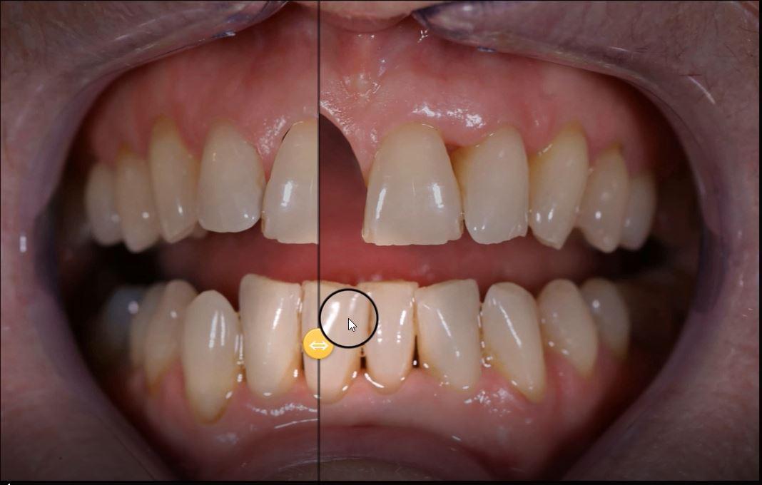 dental treatment on digital screen